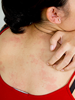 Ixekizumab FDA-Approved for Patients with Plaque Psoriasis